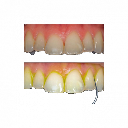 newtron hammasesimerkki